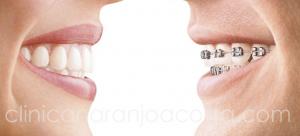 Invisalign Malaga clinica Dental Naranjo Acosta