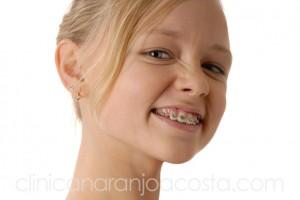 Ortodoncia jóvenes malaga