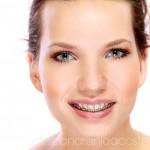 clinica_naranjo_acosta_foto_bracket_met_1a copia