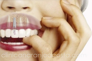 implantes dentales clinica dental malaga