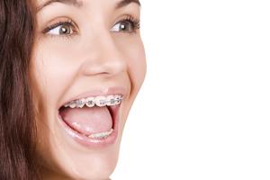 ortodoncia malaga brackets