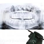 clinica_naranjo_acosta_foto_regeneracion_3a copia