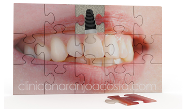 implantes dentales malaga clinica dental naranjo acosta