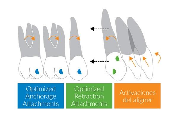 Invisalign G6 en casos de apiñamiento con extracción de premolares