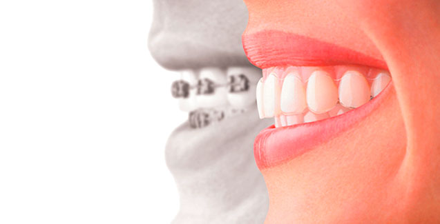 Invisalign: vanguardia en tratamientos de ortodoncia invisible