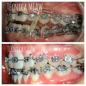 Diferencias entre las dos técnica: estética ,comodidad y acortamiento del tiempo de tratamiento con la Técnica Geaw. Clínicanaranjoacosta.com