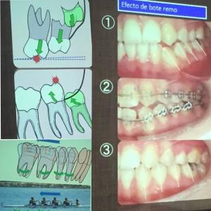 La extracción de los cordales y el enderezamiento de los sectores posteriores dentales así como de la rotación mandibular son los responsables de dicha filosofía.Clinicanaranjoacosta.com los pone a su disposición