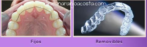 ortodoncia-retenedores