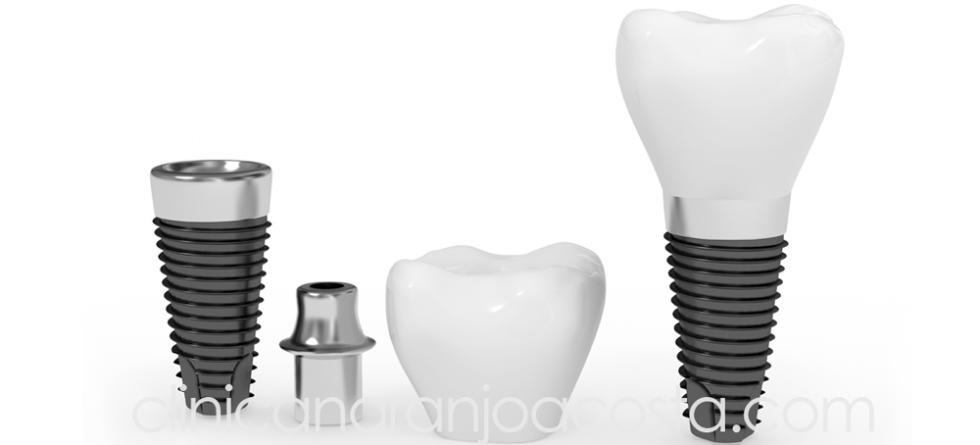 clinica_naranjo_acosta_foto_implantes-980x445
